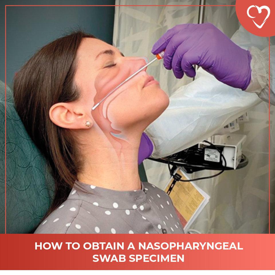 How to Obtain a Nasopharyngeal Swab Specimen