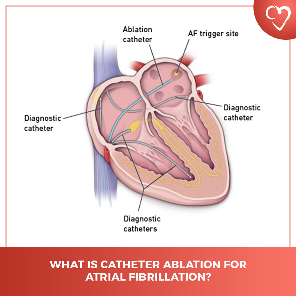 What is Catheter Ablation for Atrial Fibrillation?