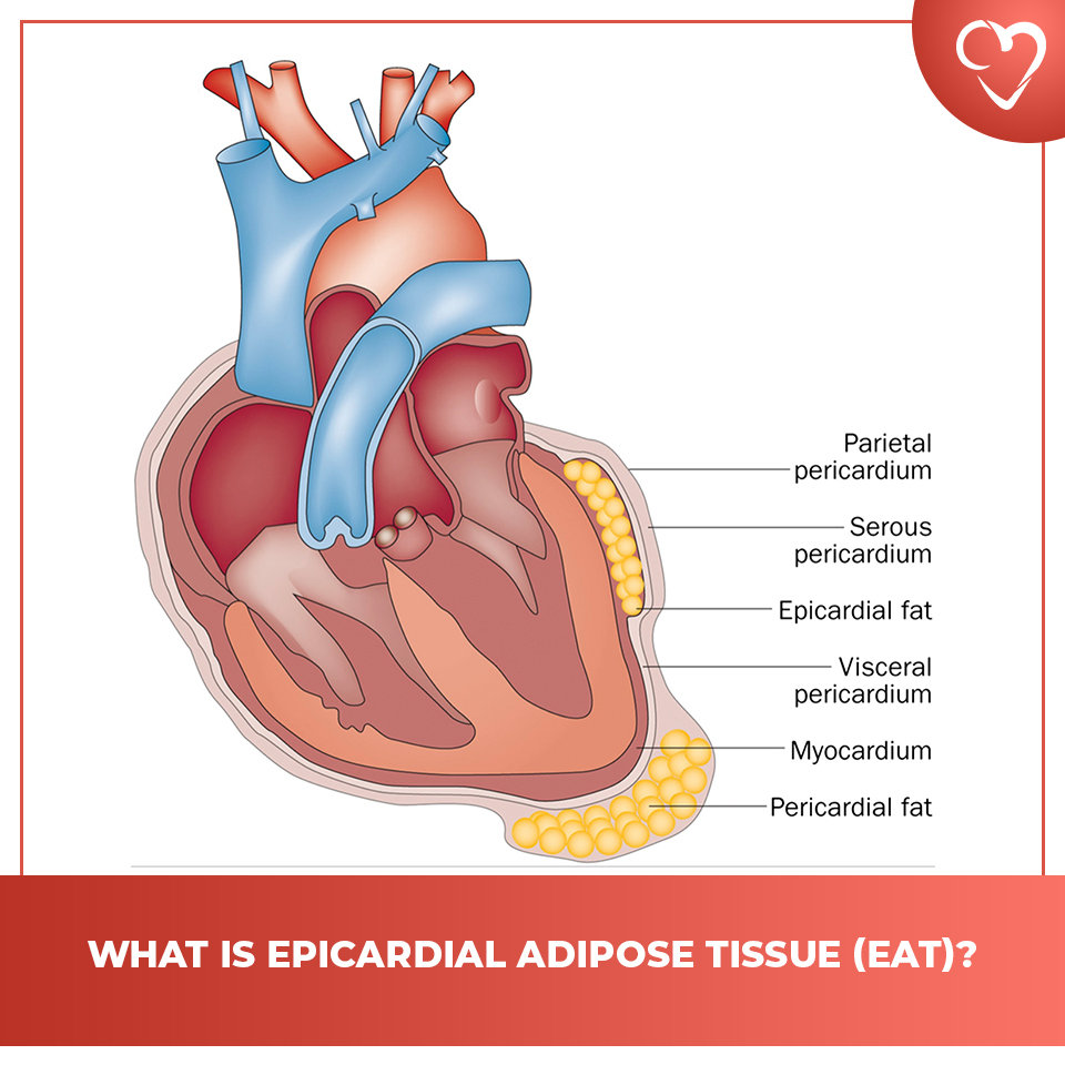 What is epicardial adipose tissue (EAT)?